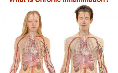 Chronic Inflammation and Cryotherapy Treatments